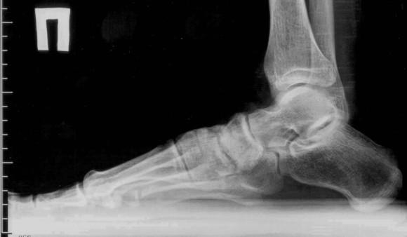 Артроз пальцев ног и стопы