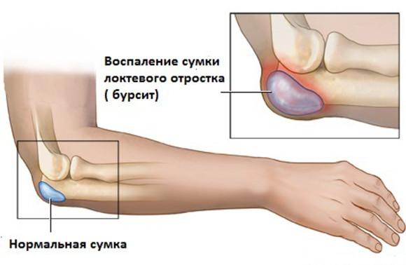 Бурсит локтевого сустава имеет разновидности