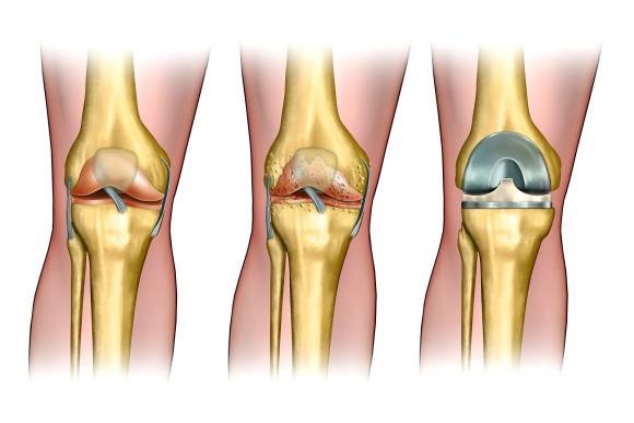 Эндопротезирование сустава проводят в сложных случаях заболевания