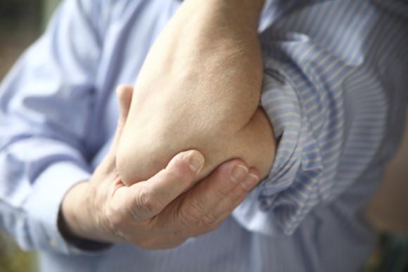 Характерные симптомы бурсита