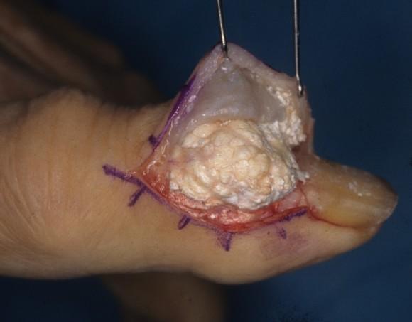 Хирургическое лечение подагры