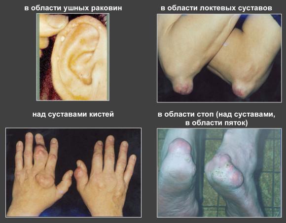 Хроническая форма заболевания