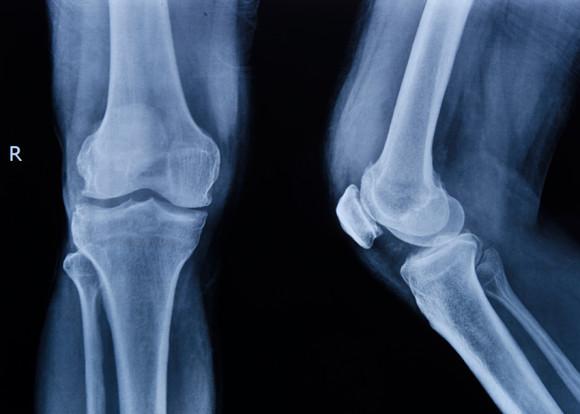 Использование рентгенографии для диагностики заболевания
