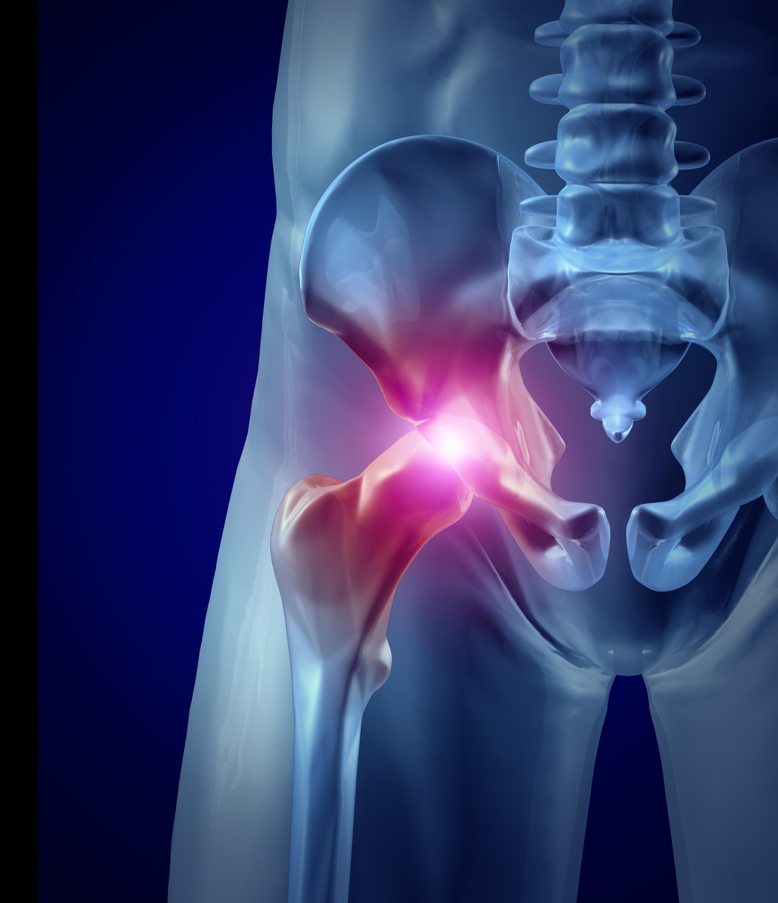 болят тазобедренные суставы лечить