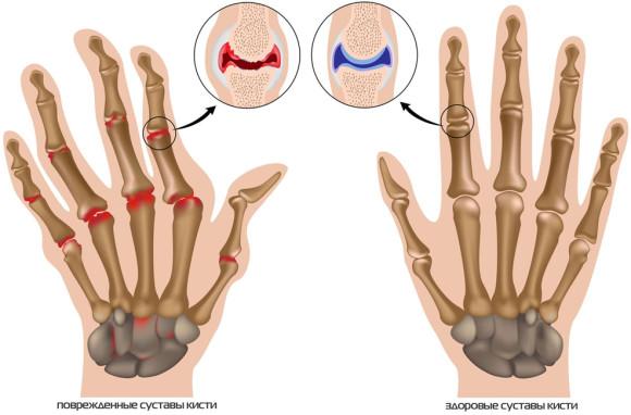 Когда назначают рентген рук