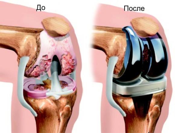 Лечение гонартроза методом протезирования