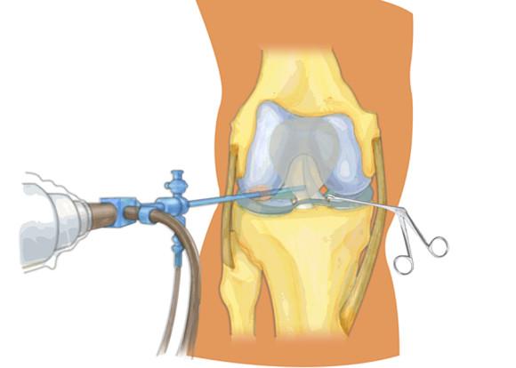 Лечение с применением артроскопии