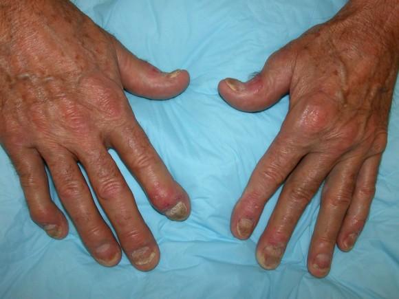 Межфаланговая дистальная форма заболевания