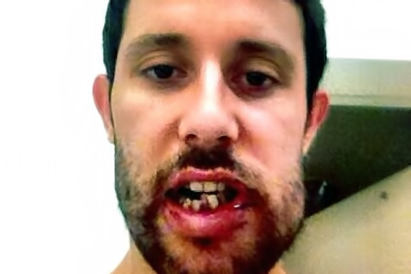 Наиболее опасная травма челюсти – это перелом