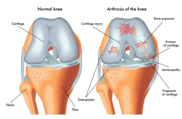 Нормальный сустав и пораженный артрозом