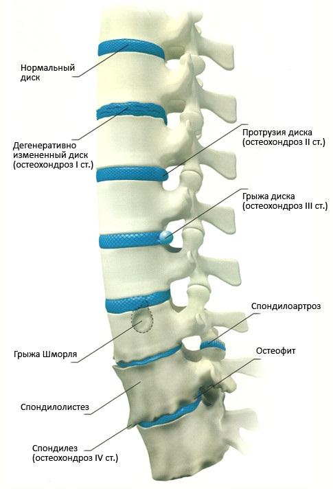Патологические изменения позвоночника при остеохондрозе