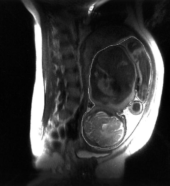 Помните, что только с 7 месяца беременности можно назначать МРТ