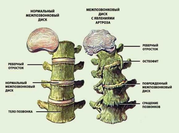 Примеры нормального и поврежденного артрозом диска
