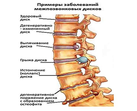 Примеры заболеваний, при которых показан рентген позвоночника