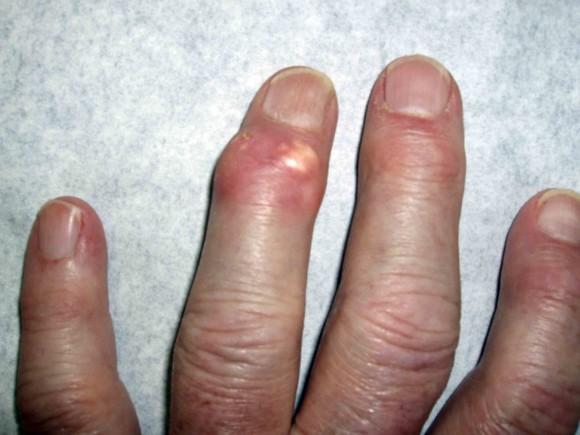 Развитие болезни на кистях рук