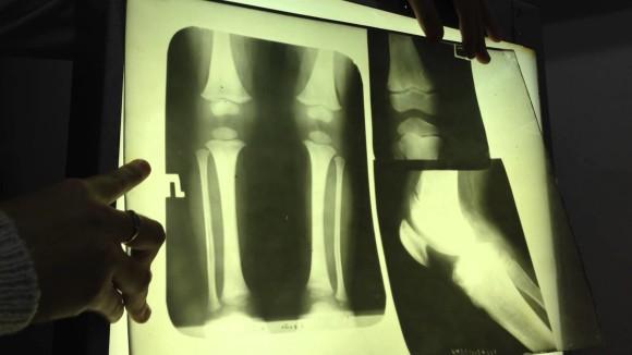 Рентген аналоговый