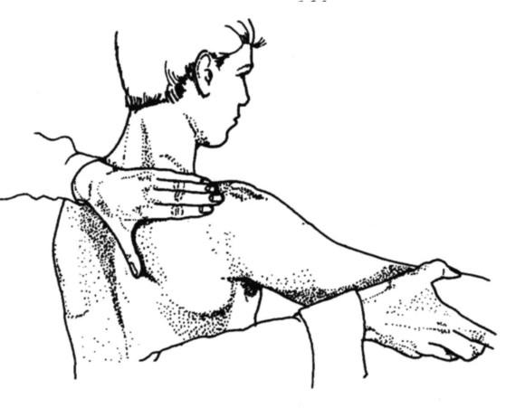 Стадия анкилоза