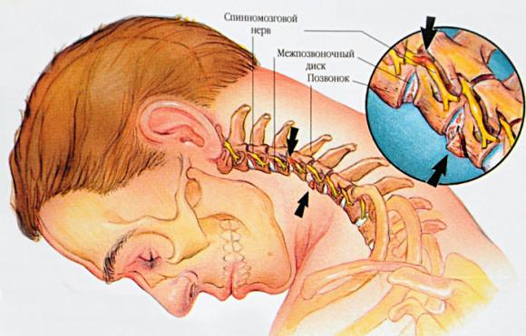 Грудной остеохондроз мидокалм
