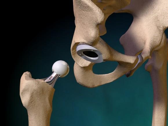 Тазобедренный сустав - объемная модель