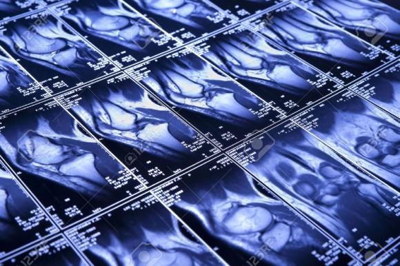 Возможности МРТ-диагностики