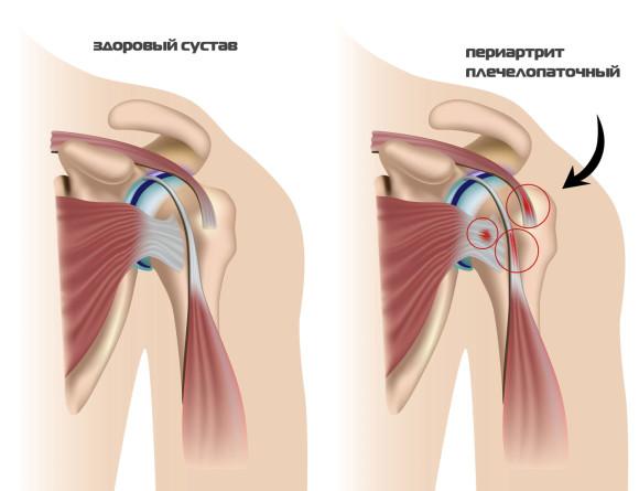 Здоровый сустав и пораженный периратритом