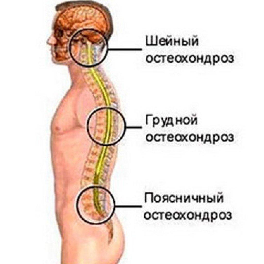 ВСД и шейно-грудной остеохондроз: причины, симптомы и лечение ...