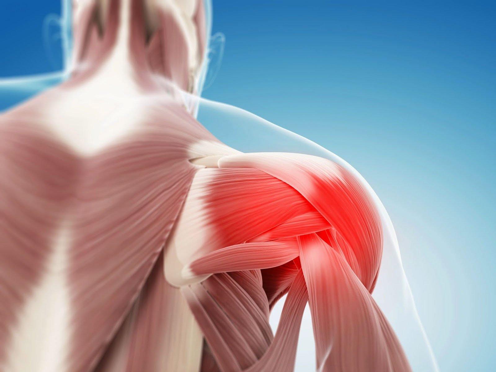 Мышцы В Плечевом Суставе Боль Лечение