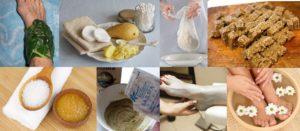 folk remedies for sprains