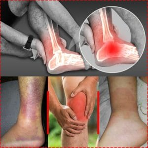 complications of sprains