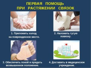 first aid for sprains