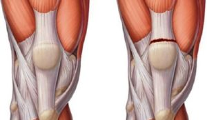 symptoms of sprains on the legs