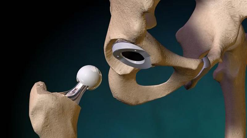 Первые эндопротезы тазобедренного сустава