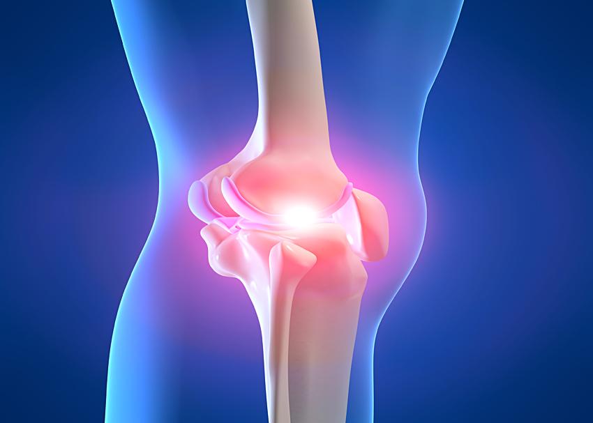 Пателлофеморальный артроз коленного сустава - причины и лечение