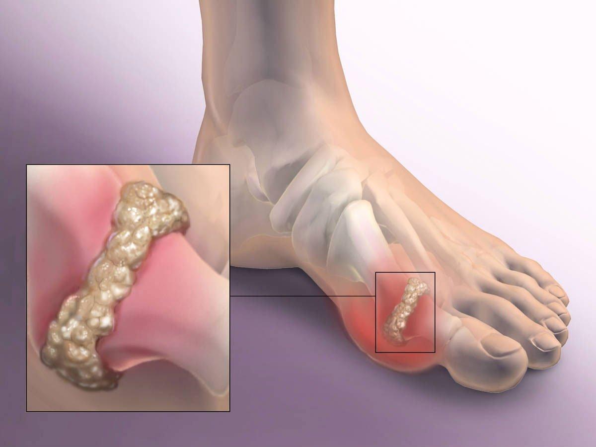 Какие суставы болят при подагре