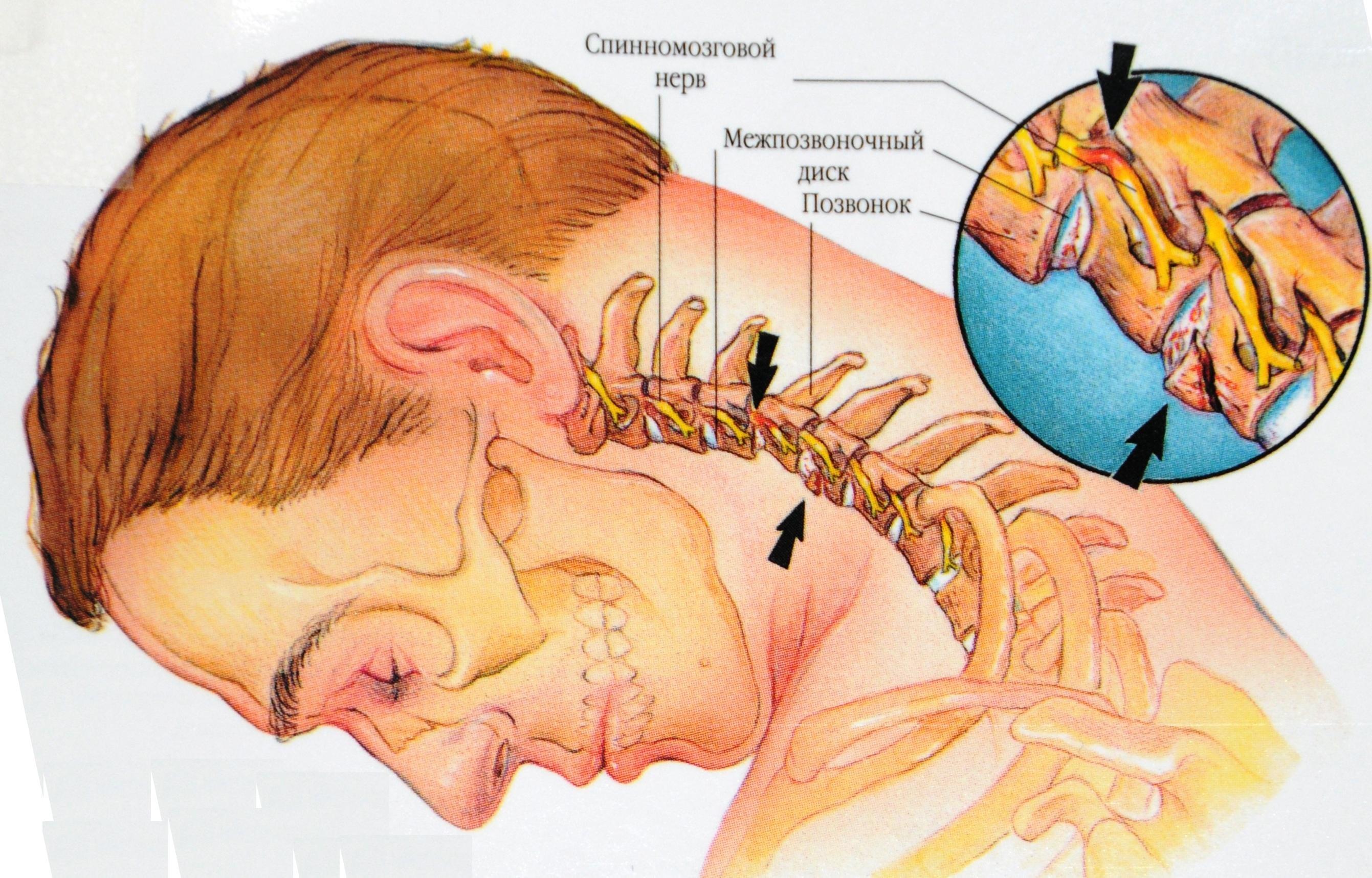 причины развития клинической картины вегето-сосудистой дистонии