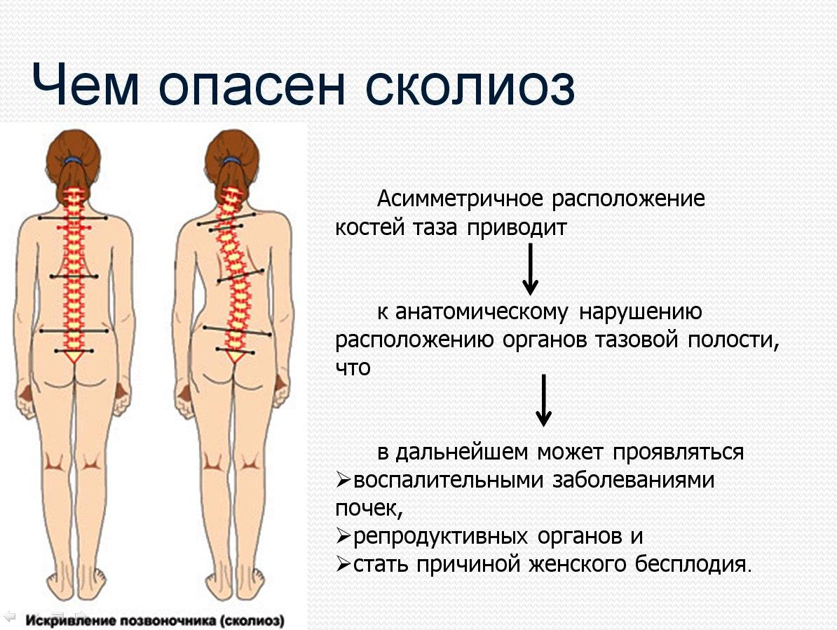 Сколиоз 3 степени особенности причины лечение профилактика